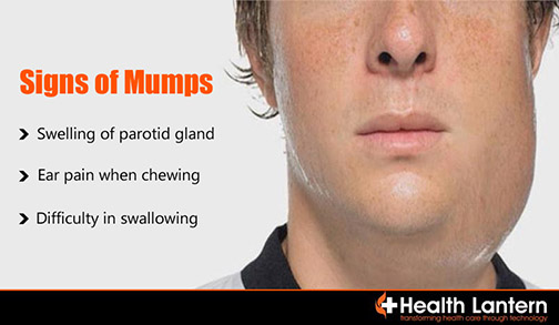 mumps symptoms in adults pictures
